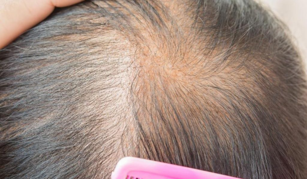 Top 5 Best Hair Products for Thinning Hair 2020